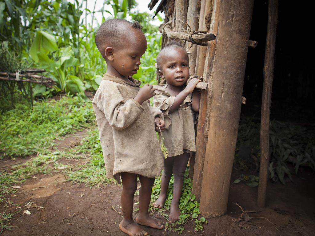 Image result for malnutrition