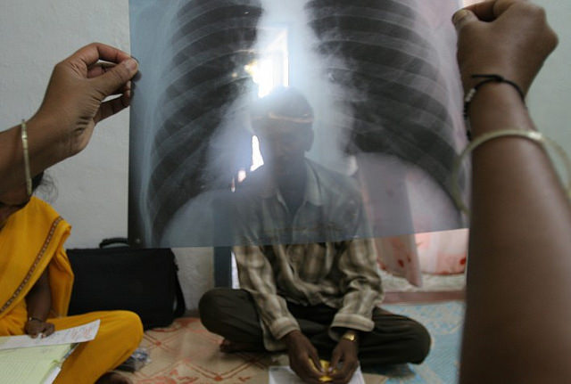 TB chest xray (Flickr/Day Donaldson, CC BY 2.0)
