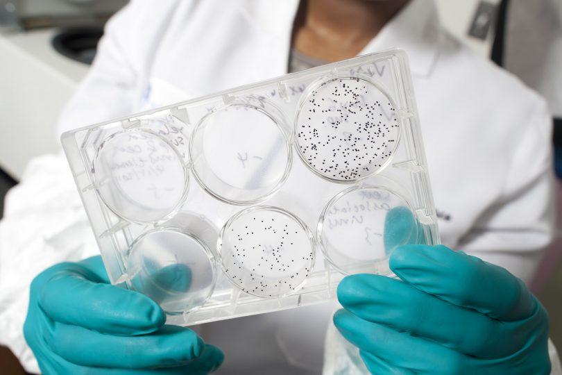 AIDS Vaccine Research