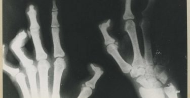 X-ray of a case of leprosy (National Museum of Health and Medicine/Flickr/CC BY 2.0)